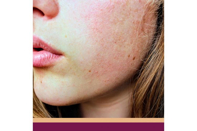 Cuidados especiais para Peles com Dermatite de Contato